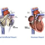 Modeling of the Human Heart