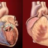 3D Printing Custom-made Artificial Heart Valves From Silicone